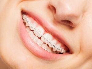 Types of Braces - Clear or Ceramic Braces - Wright Orthodontics - Batavia IL