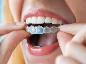 Invisalign® Clear Aligners - Wright Orthodontics - Batavia, IL