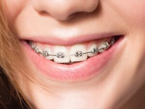 Damon Smile® Self-Ligating Braces - Wright Orthodontics - Batavia, IL