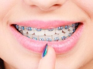 Traditional Metal Braces - Wright Orthodontics - Batavia, IL